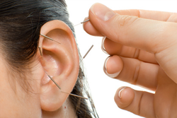 acupuncture treatment in Paisley for stress, anxiety, pain and addictions